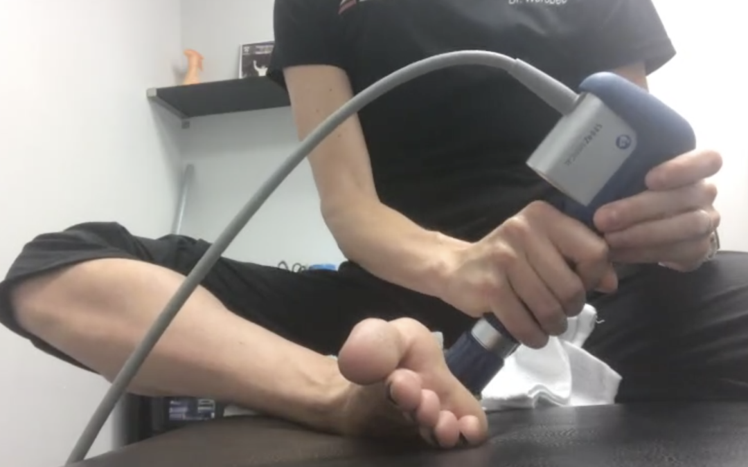 Runner's with Plantar Fascia Pain what should you do?