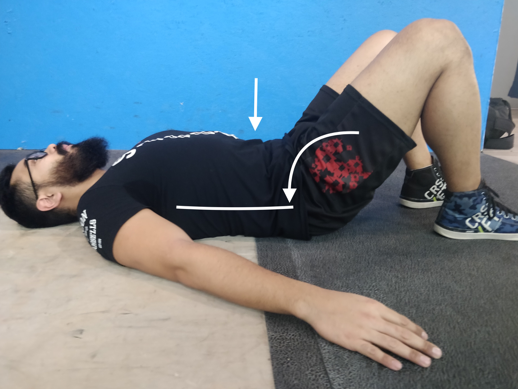 Therapy Considerations for the Flexion-Intolerant Low Back