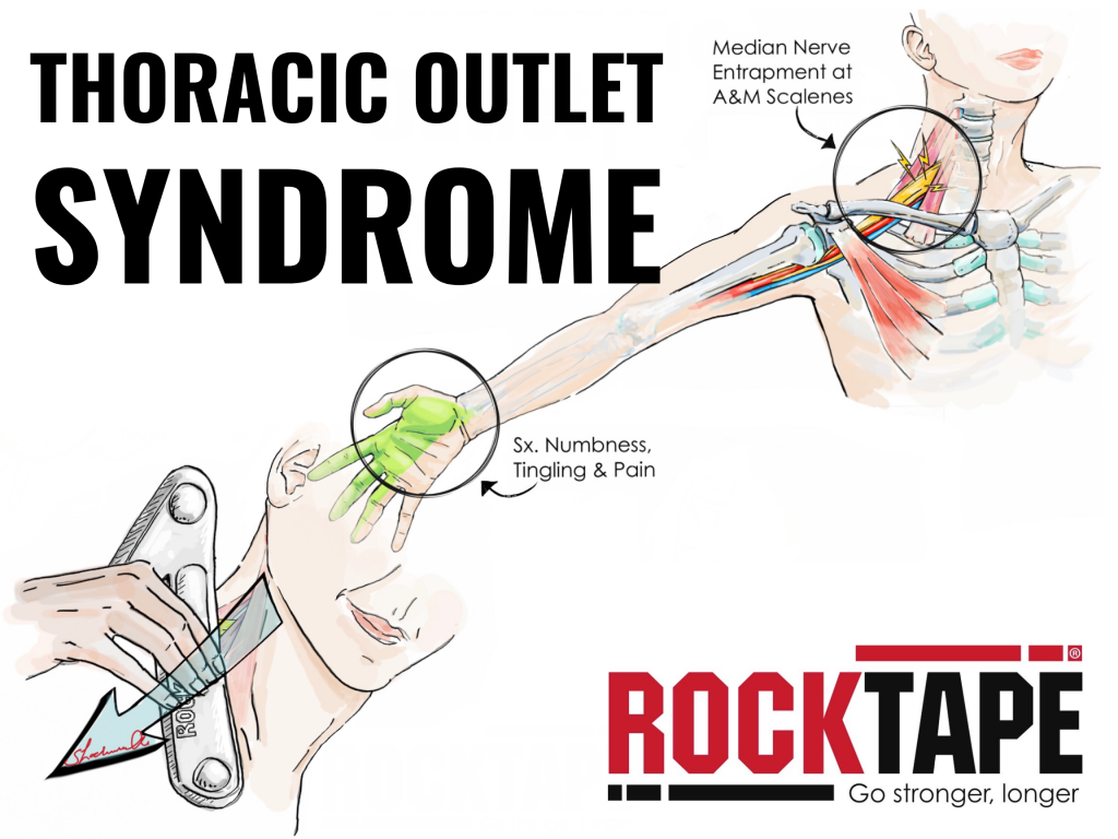 Thoracic Outlet Syndrome Anatomical Drawing