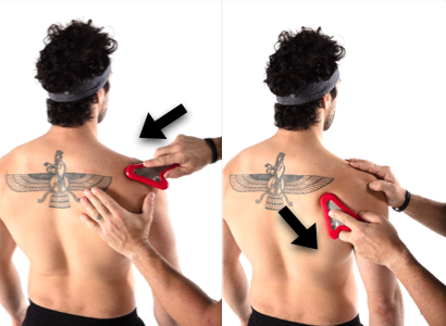 Baseball Athlete Supra Scapular Tendinopathy Treatment